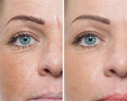 Micro-molecular hyaluronic treatment